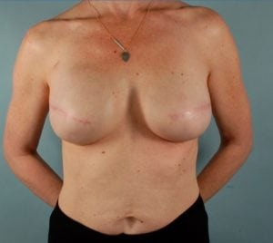 Mastectomy with Implant Based Reconstruction Before and After Pictures Washington, DC