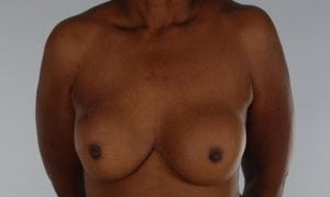 Immediate to Implant Reconstruction Before and After Pictures Washington, DC