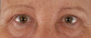Eye Rejuvenation (Upper Eyelid Excision) Before and After Pictures Washington, DC