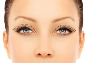 Blepharoplasty (Eyelid Surgery) in Washington, DC