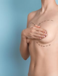 Breast Revision in Washington, DC